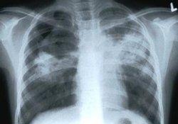 Где «прячется» средство для борьбы с лекарственно-устойчивым туберкулезом легких