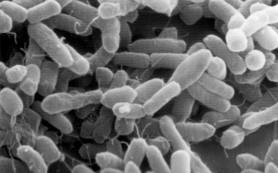 В Африке обнаружен новый смертоносный вирус