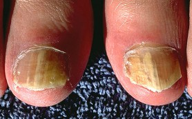 Ногтевой грибок: причины, профилактика и лечение