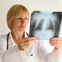 Революционный препарат от туберкулеза создан в Иркутске