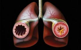 Бронхиальная астма повышает риск эмболии легочной артерии