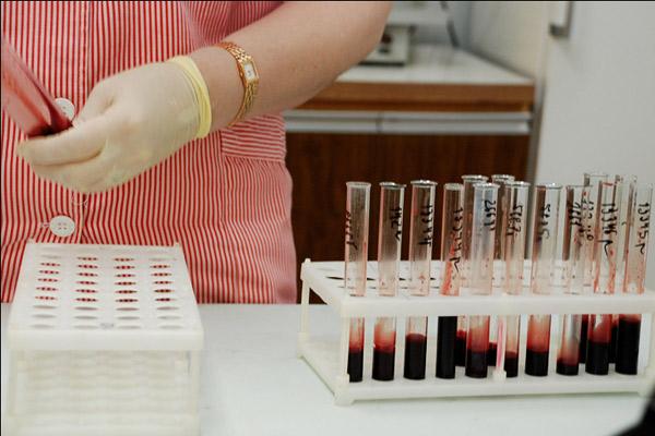 В регионе зарегистрировано 3 случая ВИЧ-инфекции