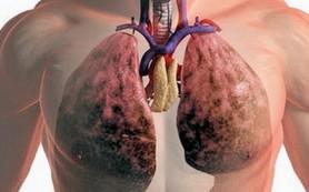 Исследование вентиляционной способности легких в доклиническом периоде хронических болезней нижних дыхательных путей