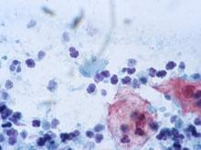 Трихомонады — один из самых хитрых и коварных патогенов, убедились эксперты