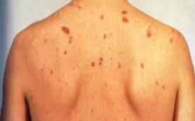 Ученые разрабатывают новый иммунный метод лечения гепатита В