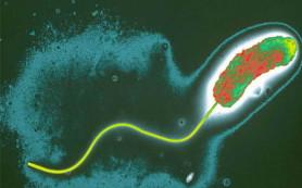 «Больной» холерой проверит бдительность вологодских медиков