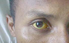Открытие может привести к новым методам лечения желтухи