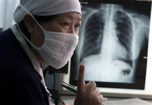 Туберкулез — новое в диагностике