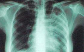 Новый тест поможет в быстрой диагностике туберкулеза у детей
