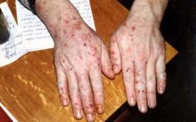 Экзему связали с лечением антибиотиками на первом году жизни