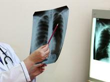 Новый лекарственный агент эффективно обезвреживает туберкулез