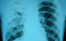 Неизлечимый туберкулез продолжает угрожать Азии