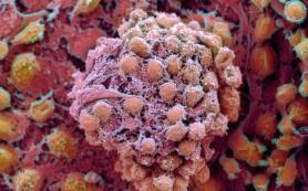 Ученым удалось «взломать» генетический код раковой клетки!