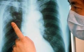 В России быстро распространяется опасный туберкулез