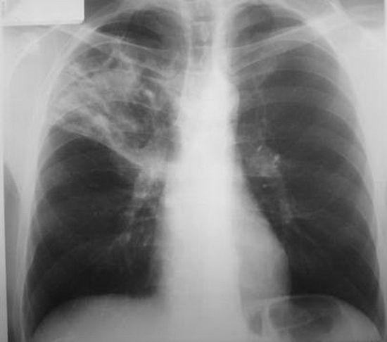 В России активизируют лечение и профилактику туберкулеза