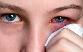 Признаки заболеваний внутри и вокруг глаз