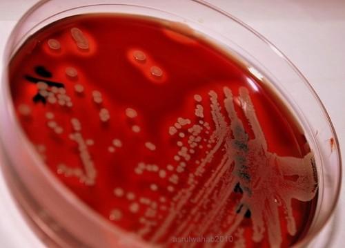 Против супермикробов найден суперантибиотик