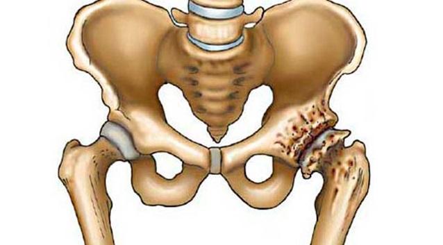 Лечение деформирующего артроза суставов