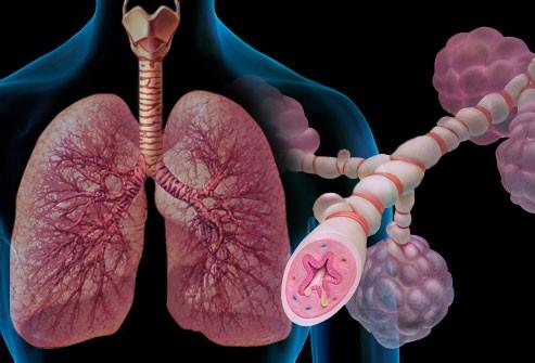 Исследователи продвинулись в разработке терапии поствирусной астмы