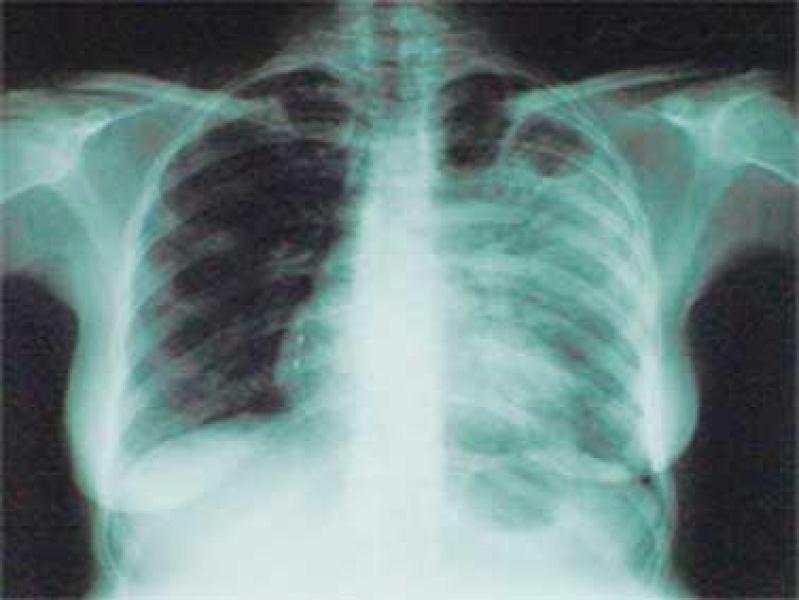 Создано средство против стойкого к лекарствам туберкулеза