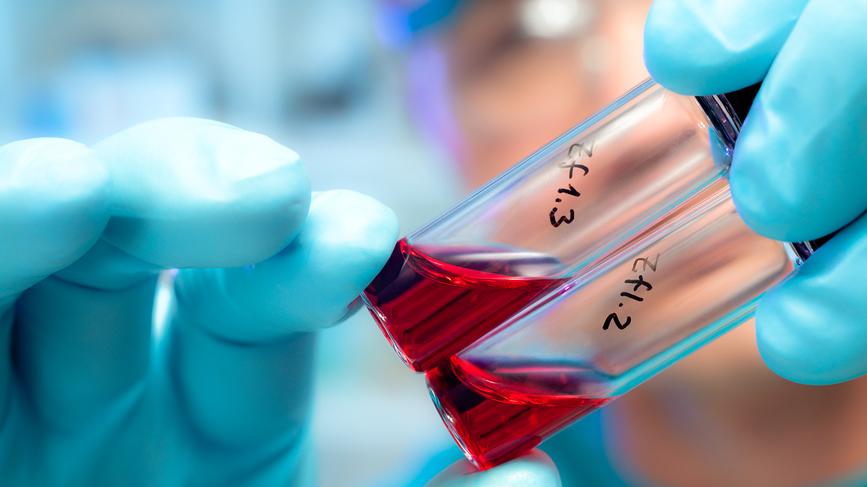 Разработан еще один тест на лихорадку Эбола
