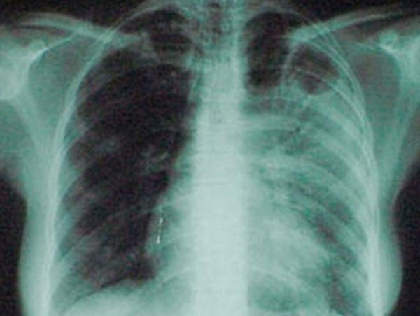 Создан препарат для борьбы с туберкулезом с множественной лекарственной устойчивостью