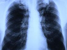 Уникальная терапия избавляет от туберкулеза в кратчайшие сроки
