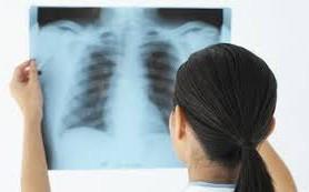Общие сведения о раке легких