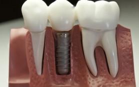 Имплантация: лучший способ восстановления зубов