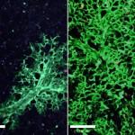 Ученые опробовали стволовые клетки для восстановления легких