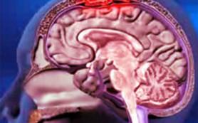 Менингит: какие симптомы заболевания