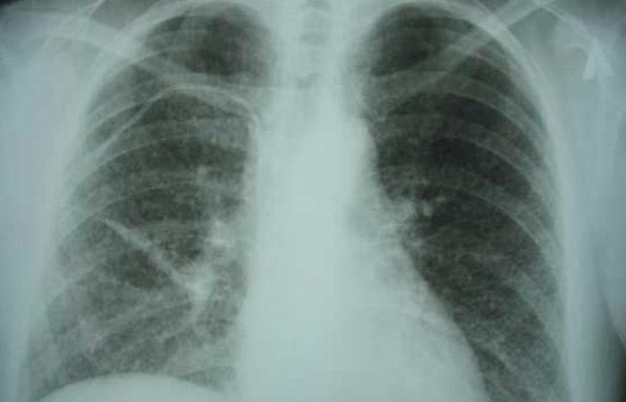 В Африке будут лечить туберкулёз иркутским препаратом