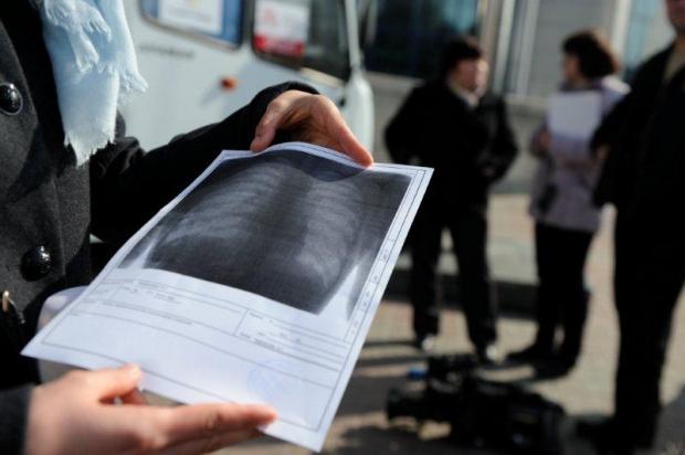 Учёный установил, что препарат от изжоги способен лечить мультирезистентный туберкулез