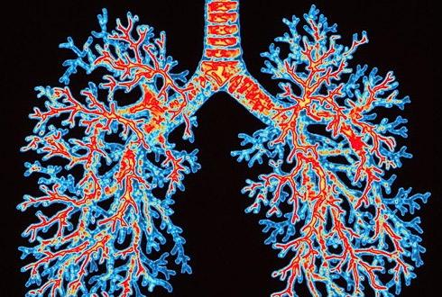 Место жительства человека напрямую влияет на риск заболеть астмой