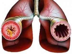 Упражнения на холоде могут спровоцировать приступ бронхиальной астмы