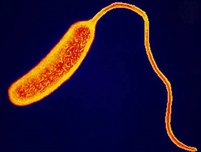 ЮНИСЕФ: вспышка холеры в Ираке может перерасти в региональную эпидемию