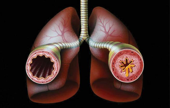 Лечение бронхиальной астмы чесноком
