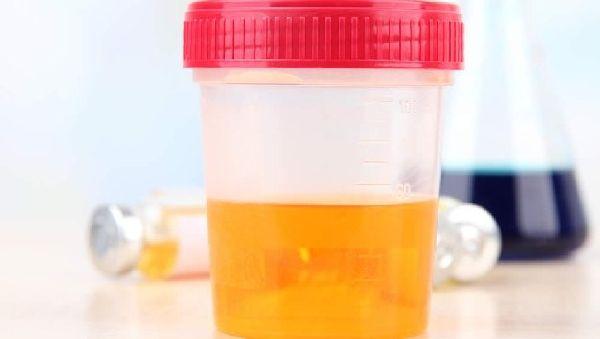 Гепатит С можно будет диагностировать по… моче