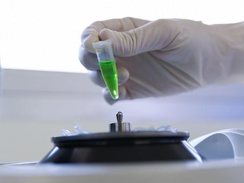 Диагностировать туберкулез теперь можно быстро и дешево