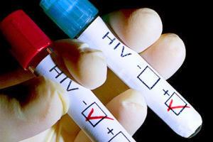 Медики: У 21 тысячи человек в Крыму выявлена ВИЧ-инфекция