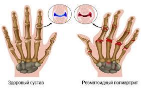 Современные методики лечения полиартрита