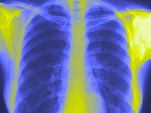 Ученые нашли в легких клетки-сенсоры, стоящие за работой иммунитета