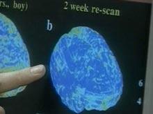 Открытие: заболевание легких меняет структуру мозга