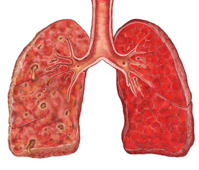 Грипп и пневмония: как не допустить усложнения