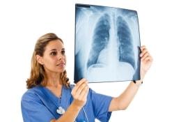 Точная экспресс-диагностика туберкулеза возможна и без исследования мокроты