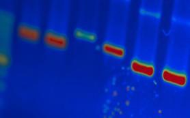 ВИЧ пытаются предотвратить на генном уровне