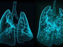 Метод сканирования турбин переворачивает диагностику болезней легких