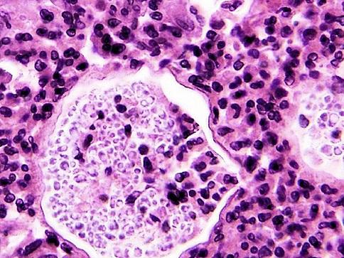 Ученые детально показали, как происходит заражение мозга менингитом