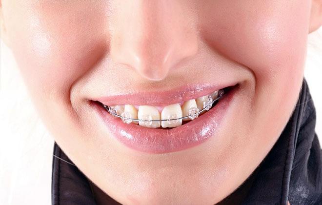 Ортодонтия. Выравнивание зубов бререкетами