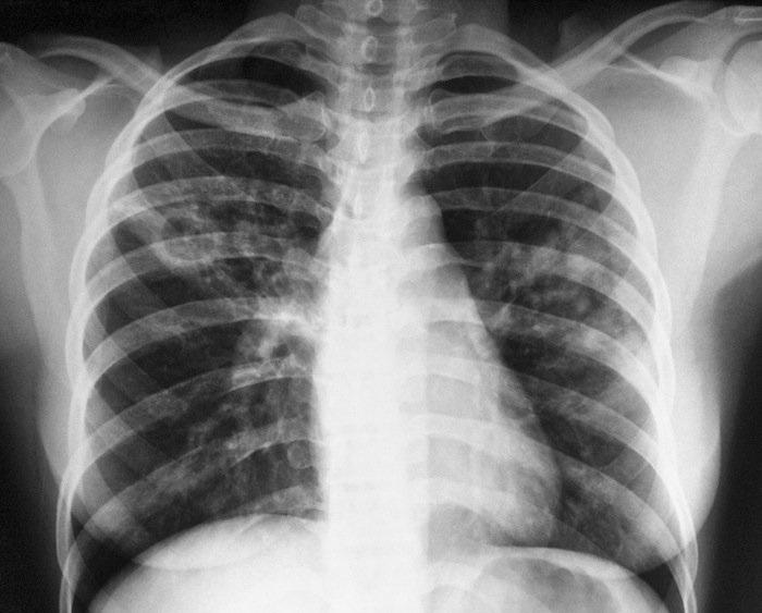 СМИ: геймеры помогут диагностировать туберкулез